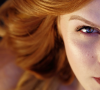 Pigmentové škrny na tvári: modelka